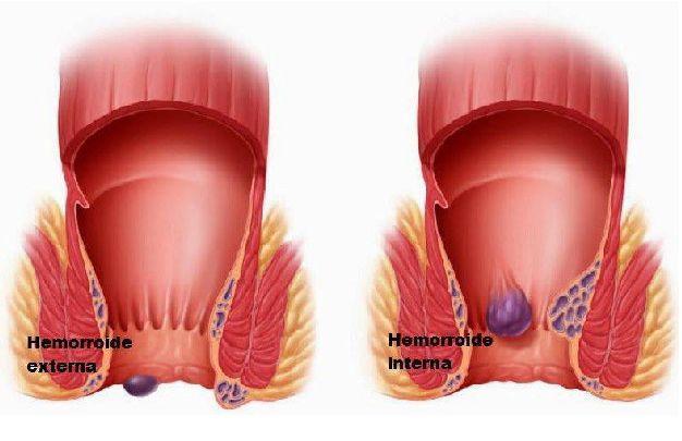 Almanecer tecnicas holisticas sevilla dos hermanas autogestion para la salud hemorroides homeopatia